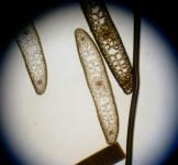 エビアマモ 横断切片写真