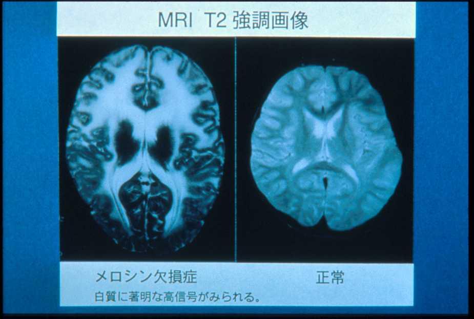 メロシン欠損型先天性筋ジストロフィー