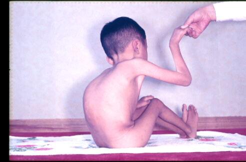 ウールリッヒ型先天性筋ジストロフィー