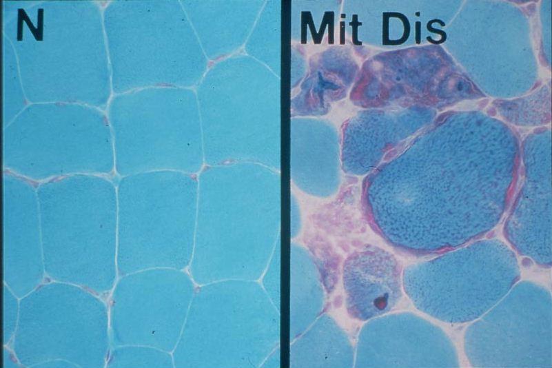 ミトコンドリア病