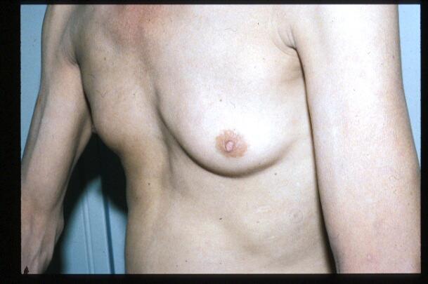 球脊髄性筋萎縮症