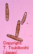 レッドトップ斑点病菌