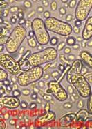 モロコシ麦角病菌
