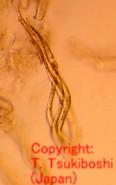 トウモロコシ北方斑点病菌