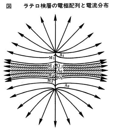 ラテロ検層