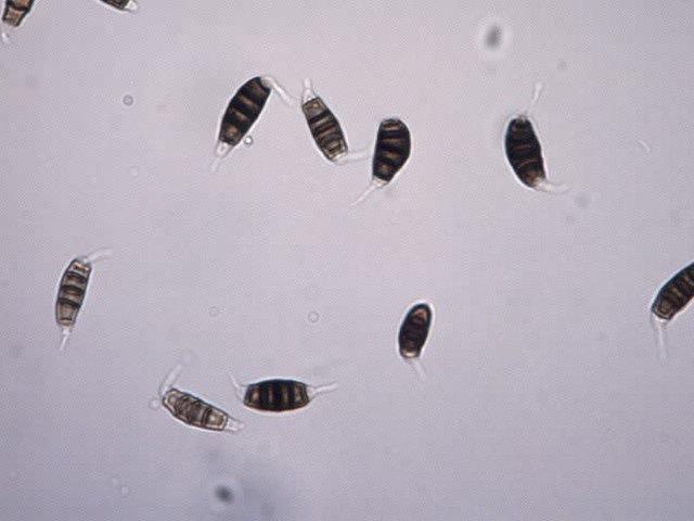 病原菌の分生子